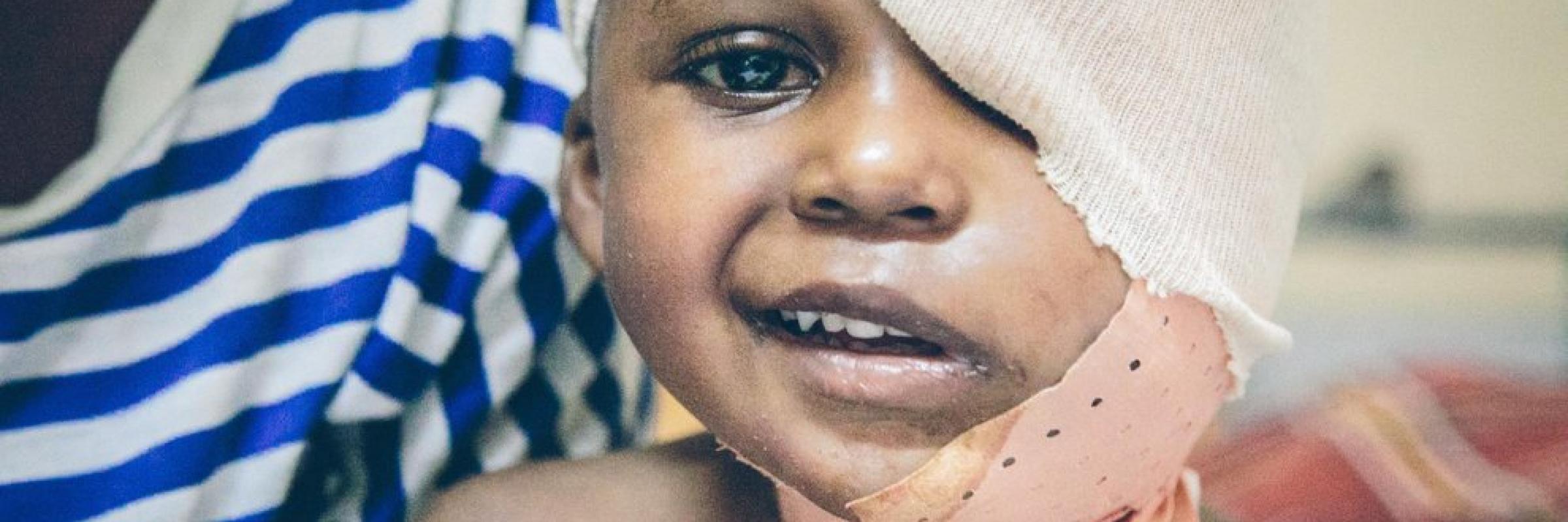 HEAL Africa moise salivary gland tumor